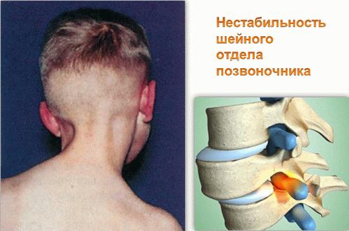 Как укрепить шейный отдел позвоночника у грудничка