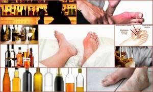 Алкоголь при подагре: можно ли при подагре пить водку, как совмещать и какой алкоголь можно, пиво и красное вино при подагре