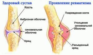 Анализы на ревматизм, необходимые для постановки диагноза. Показатели нормы в зависимости от возрастной категории