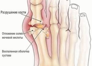Артрит сосудов нижних конечностей лечение -