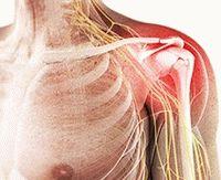 Артроскопия плечевого сустава реабилитация после операции отзывы