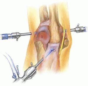 Артроскопия тазобедренного сустава в москве
