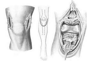 Артротомия и резекция сустава – в чем разница?