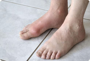 Артрозо артрит голеностопного сустава