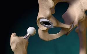 Асептический некроз головки бедренной кости симптомы