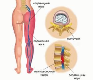 Болят суставы спины рук и ног