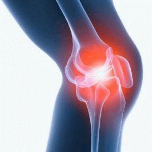 Почему болит колено когда долго согнуто