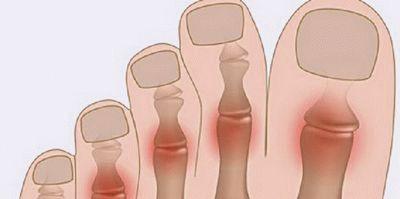 Болит подушечка стопы при ходьбе