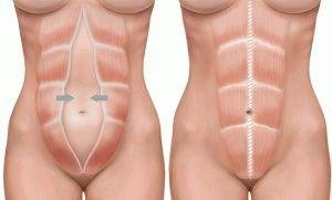 Боль в тазобедренном суставе, отдающая в пах: причины и лечение