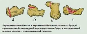 После бега болит голеностоп: боль в голеностопном суставе