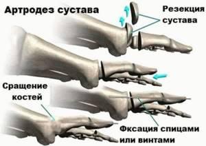 Артродез голеностопного сустава: отзывы пациентов, что такое артродез коленного сустава, артродез позвоночника и последствия
