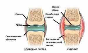 Синовит коленного сустава код по мкб 10