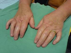 Ванны при артрите псориатическом артрите фото