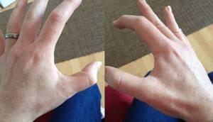Самопроизвольно дергается палец на руке. Почему дергается большой палец на правой руке и как лечить тик