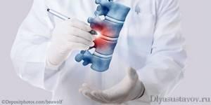 Какой врач лечит гемангиома и грыжу позвоночника