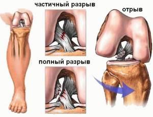 Замена суставов при гемофилии