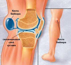 Грыжа коленного сустава — Суставы