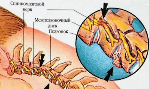 Как выглядит остеохондроз фото