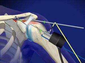 Импичмент синдром плечевого сустава