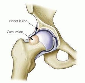 Импичмент синдром плечевого сустава лечение народными средствами