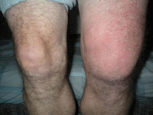 Септический артрит коленного сустава лечение -