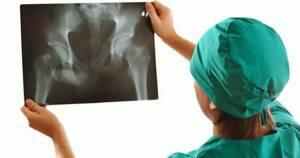 Какой врач лечит коксартроз тазобедренного сустава