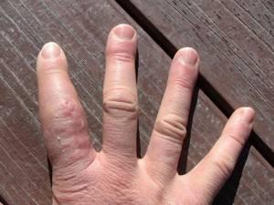 солевые ванночки после перелома