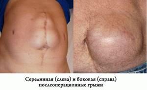 Пупочная грыжа у взрослых: лечение без операции (отзывы)