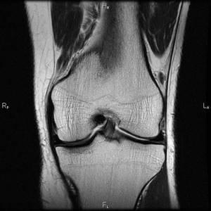 Повреждение капсульного аппарата голеностопного сустава