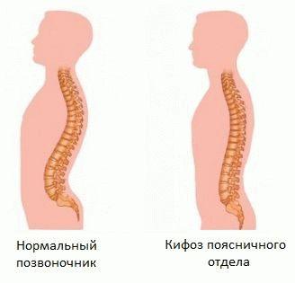 Симптомы и лечение кифоза поясничного отдела позвоночника — СПИНАИНФО
