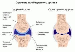 Коксартроз коленного сустава симптомы и лечение