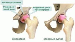 Коксартроз тазобедренного сустава 2 степени инвалидность
