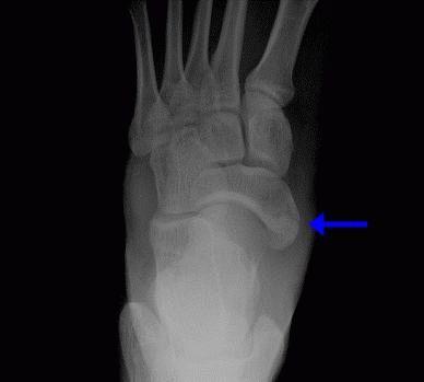 то, есть перелом ладьевидной кости стопы фото вот для многоцелевого