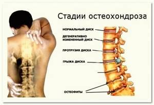 Доктор бутримов упражнения для позвоночника