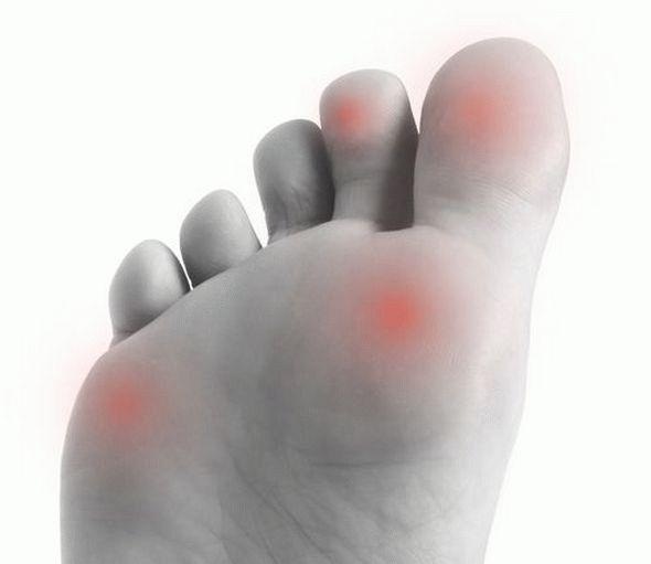 Лекарства от ревматизма и артрита -