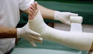Ложный сустав после перелома. Ложный сустав бедра