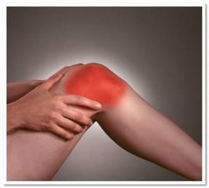 Лечение артрита коленного сустава мазями фото