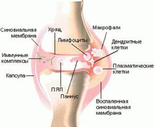 Мази при полиартрите суставов