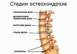 Можно ли греть спину при различных видах остеохондроза за и против
