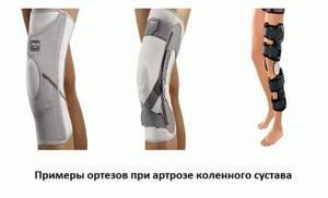Бандаж на коленный сустав при артрозе