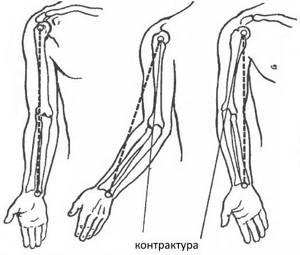 Массаж контрактура локтевого сустава