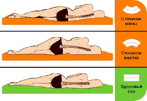 Какой матрас выбрать при сколиозе