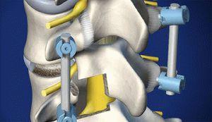 Имплант в позвоночнике
