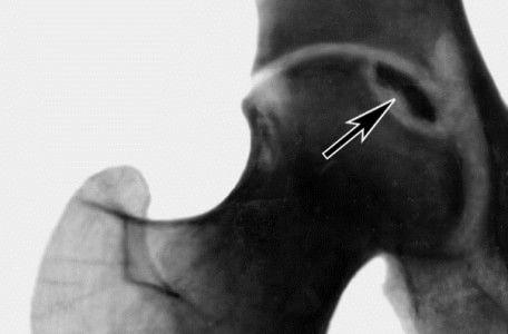 Остеогенная саркома бедренной кости - 6 симптомов и прогноз