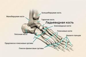 Остеохондропатия ладьевидной кости стопы - Ортопед.info