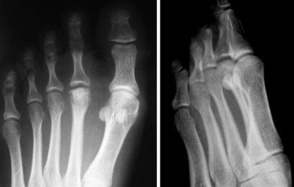 Хондропатия ладьевидной кости стопы