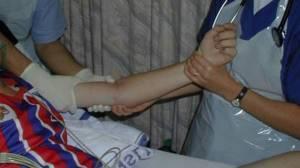 Перелом головки лучевой кости локтевого сустава
