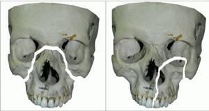 Перелом лобной кости черепа последствия