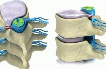 Лечебное плавание при грыже шейного отдела позвоночника