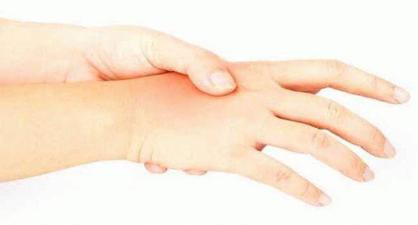 Почему по утрам после сна отекают руки и пальцы